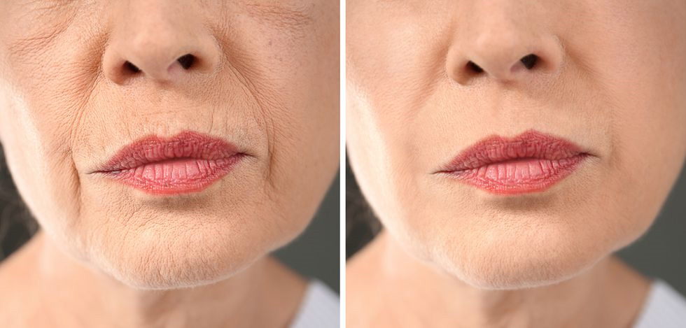 picture of a woman, before and after a profhilo treatment