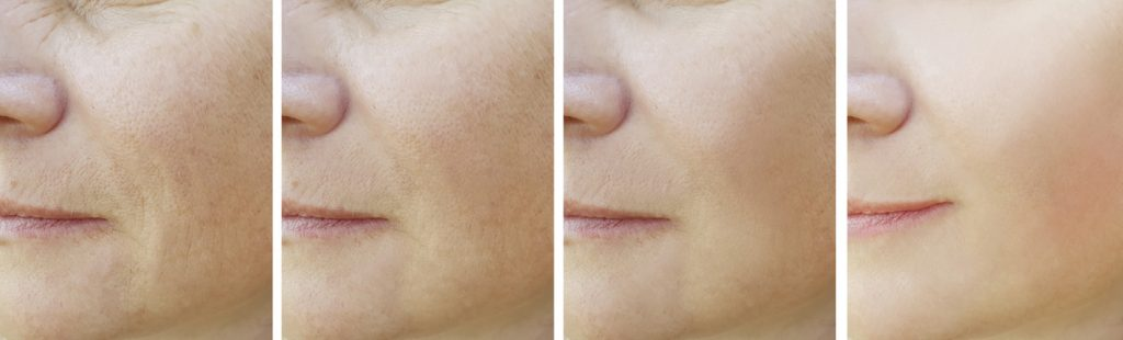 picture of the various successful stages of a profhilo treatment